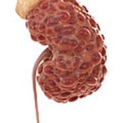 Polycystic Kidney Art Print