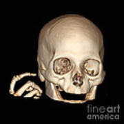 3d Ct Reconstruction Of Head And Hand Art Print