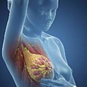 Breast Examination Art Print