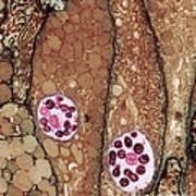 Chlamydia Infection Tem Art Print