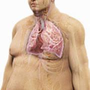 Obesity Art Print