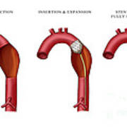 Aortic Aneurysm Stent, Illustration Art Print