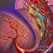 Artery Showing Atherosclerotic Plaque Art Print