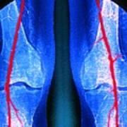 Artery Stenosis Art Print