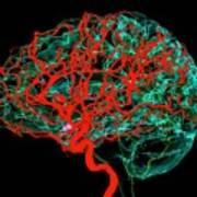 Blood Vessels Supplying The Brain Art Print