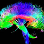 Brain Pathways Art Print