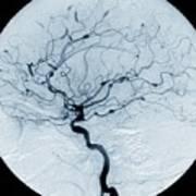 Cerebral Aneurysms In Lupus Art Print
