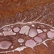 Cervical Polyp, Light Micrograph Art Print