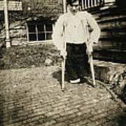 Child Labor, Frank, Whose Legs Were Cut Art Print