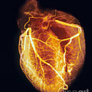 Colored Arteriogram Of Arteries Of Healthy Heart Art Print