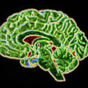 Coloured Ct Scan Of A Healthy Brain (side View) Art Print
