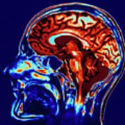 Coloured Mri Scan Of Brain In Sagittal Se Art Print