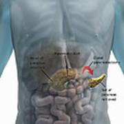 Distal Pancreatectomy Art Print
