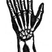 Hand Bones Art Print