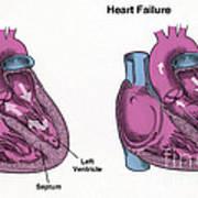 Healthy Heart Vs. Heart Failure Art Print