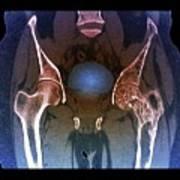 Hips In Paget's Disease Art Print