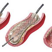 Insertion Of Stent Into Atherosclerotic Art Print