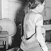 Japanese Female Victim Of Atom Bomb Art Print