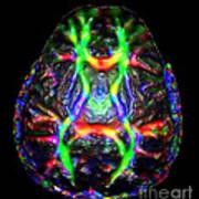 Normal Brain Diffusion Tractography Art Print