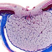 Optic Disk And Optic Nerve, Lm Art Print