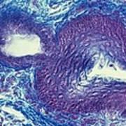 Sebaceous Gland, Light Micrograph Art Print