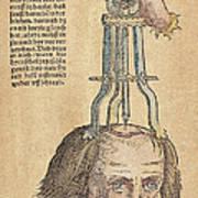 Skull Operation, 1517 Art Print