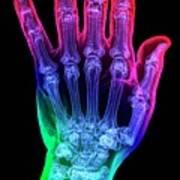 Thumb Fracture Art Print