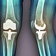 Total Knee Replacement, X-rays Art Print