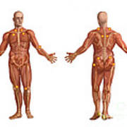 Trigger Points On The Human Body Art Print