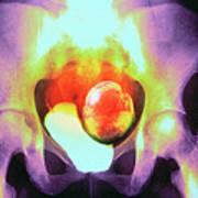 Uterine Fibroid Art Print