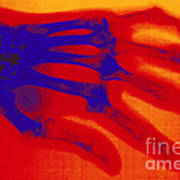 X-ray Of Hand With Rheumatoid Arthritis Art Print