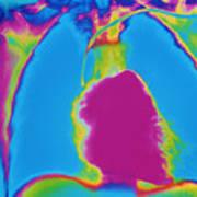 X-ray Of Heart Art Print