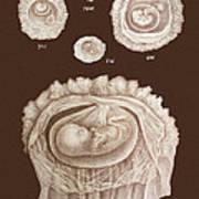 Development Of A Foetus In A Womb, 1891 Art Print