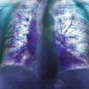 Fibrosing Alveolitis, X-ray Art Print