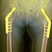 Fixed Double Hip Fracture (image 2 Of 2) Art Print by Du Cane Medical Imaging Ltd