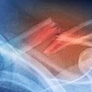 Fractured Collar Bone, X-ray Art Print