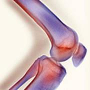 Healthy Knee, X-ray Art Print