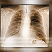 Heart And Lungs, X-ray Art Print