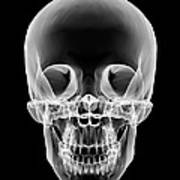 Human Skull, X-ray Artwork Art Print