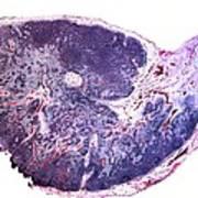 Lymph Gland, Light Micrograph Art Print by Dr Keith Wheeler
