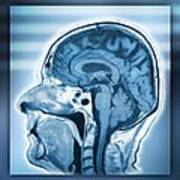 Normal Head And Brain, Mri Scan Art Print