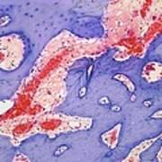 Osteoid Osteoma, Light Micrograph Art Print