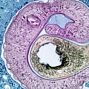 Schistosoma Mansoni Art Print