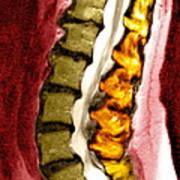 Spine Degeneration, Mri Scan Art Print