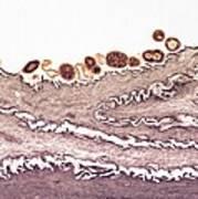 Tongue Bacteria, Tem Art Print