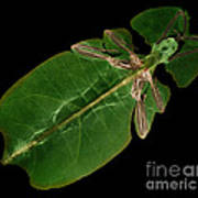 X-ray Of A Giant Leaf Insect Art Print