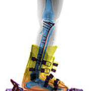 X-ray Of Broken Bones In Ski Boot Art Print