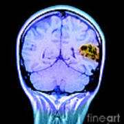 Mri Of Brain Avm Art Print