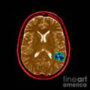 Mri Of Brain Avm Art Print