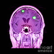 Brain Tumors Art Print